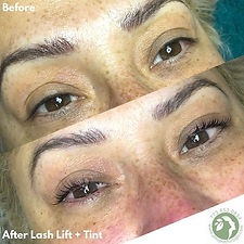 Beautiful and natural results after our