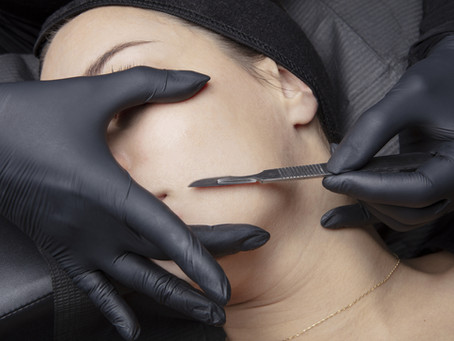 What Is Dermaplaning About?