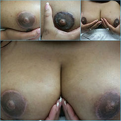 dark areola 1.jpeg
