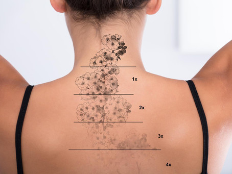 Non Laser Tattoo Removal - Why it's better than laser tattoo removal?