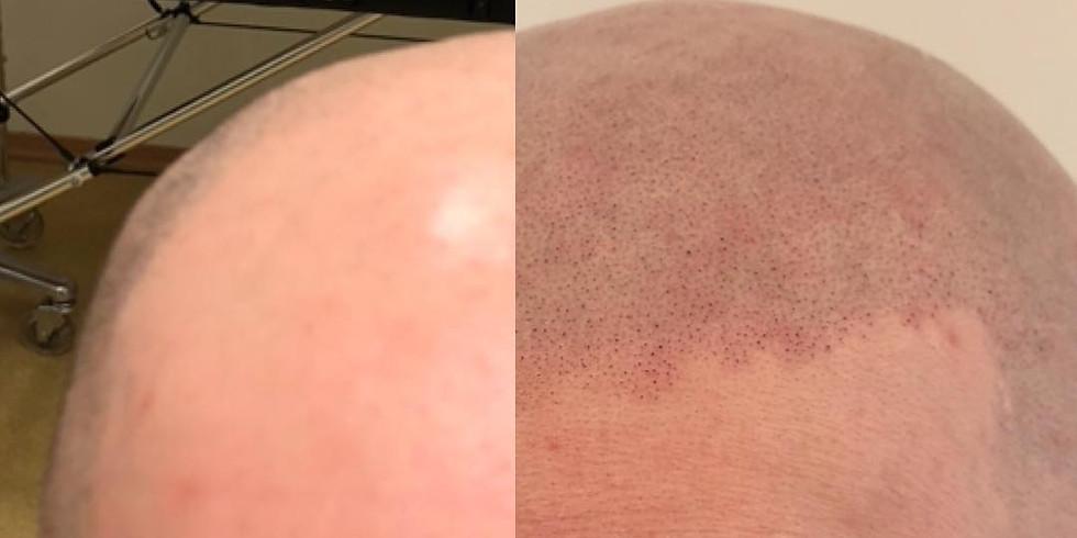 2 Days Scalp Hair Micropigmentation Training $2,500