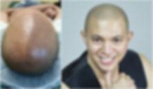 Micro Scalp Collage.jpg