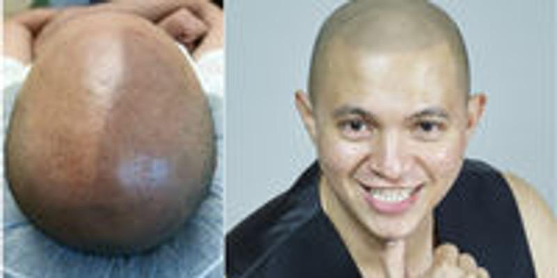 3 Days Scalp Hair Micropigmentation Training $3,850