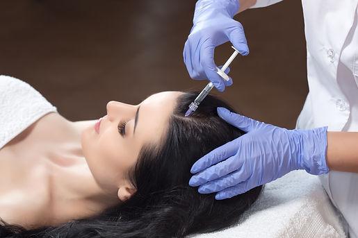 Mésothérapie des Cheveux