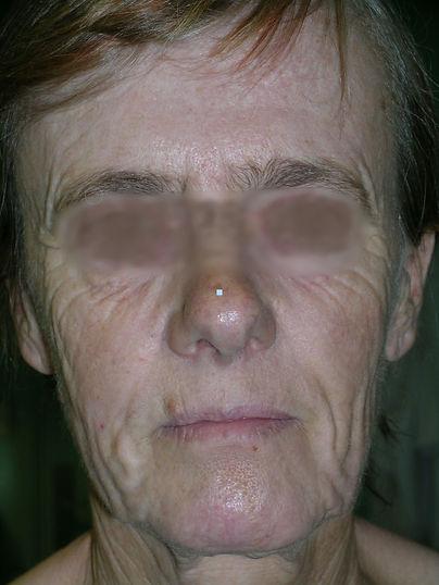Vieillissement Facial 4 - Floute - bis.j