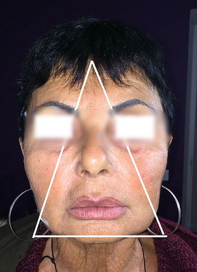 Vieillissement Facial 5 - Floute.jpg