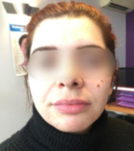 Lèvres_Sup_-_Apres_-_Floute.jpg