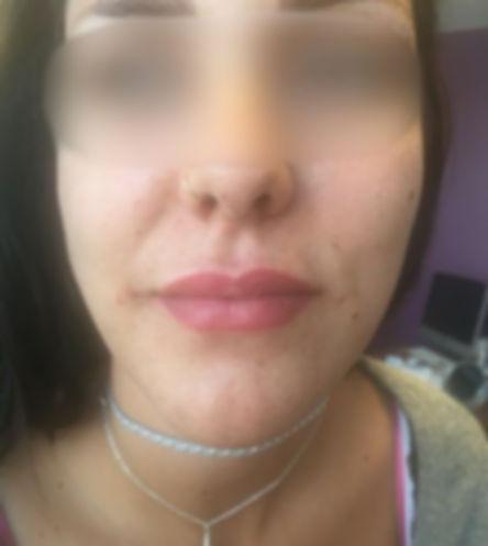 Lèvres 3 - Après - Floute.jpg