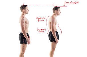 Mal au dos Posture lumbago torticolis lombalgie cervicalgie Ostéopathe Saint Pierre Malcurat et Gabriele