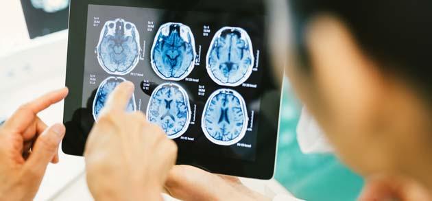 neurology_img