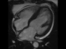 Cardiac MRI Bath.png