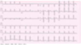 Atrial Fibrillation Bath.jpg