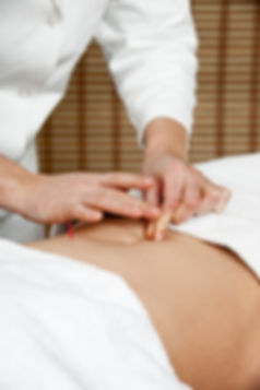 Lake Highlands Acupuncture, Acupuncture Therapy, Dallas Acupuncture, Acupuncture for Pain Dallas