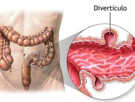 Divertículo Gástrico simulando lesión suprarrenal