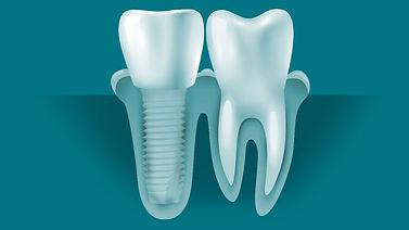 crown-implant-diagrams.jpg