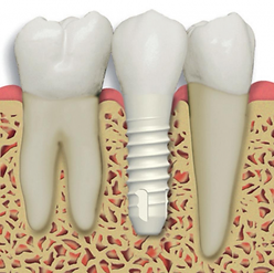 biodental_26_01.png