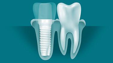 screw-implant-diagrams.jpg