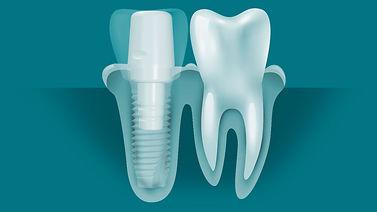 abutment-implant-diagrams.jpg
