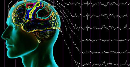 Beyin Dalgaları Şeması