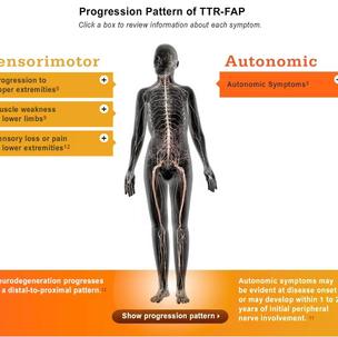 TTRFAP Progression