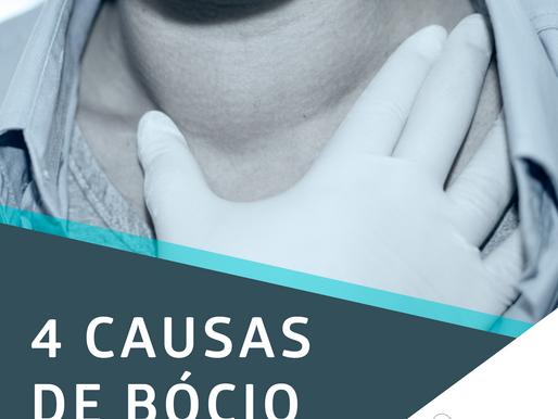 4 causas de bócio