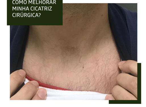 Como posso melhorar minha cicatriz cirúrgica?