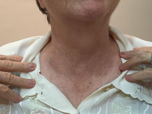 Seu nódulo da tireoide pode virar câncer?
