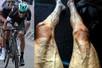 Veiny legs