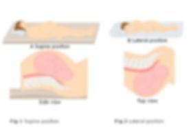 lateral-versus-supine.jpg