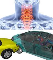 Biomechanika i ocena ryzyka obrażeń.