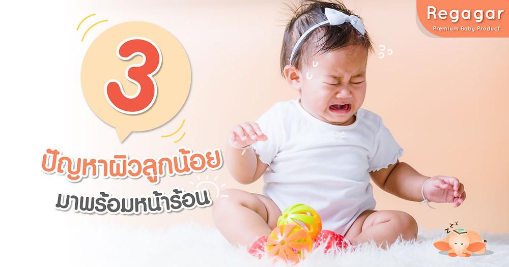 3 ปัญหาผิวทารก หน้าร้อน