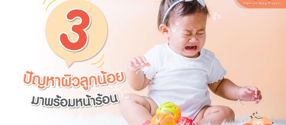 3 ปัญหาผิวทารก  ที่มาพร้อมกับหน้าร้อน