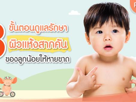 3 ขั้นตอนดูแลรักษา ผิวแห้งสากคัน ของลูกน้อยให้หายขาด