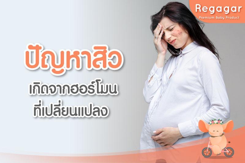 ปัญหาผิวคุณแม่ตั้งครรภ์ สิว