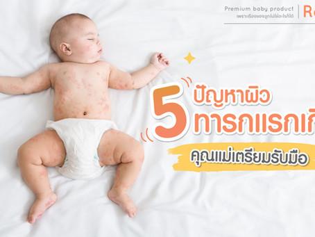 5 ปัญหาผิวทารกแรกเกิดที่คุณแม่ทุกบ้านต้องเตรียมรับมือ !!