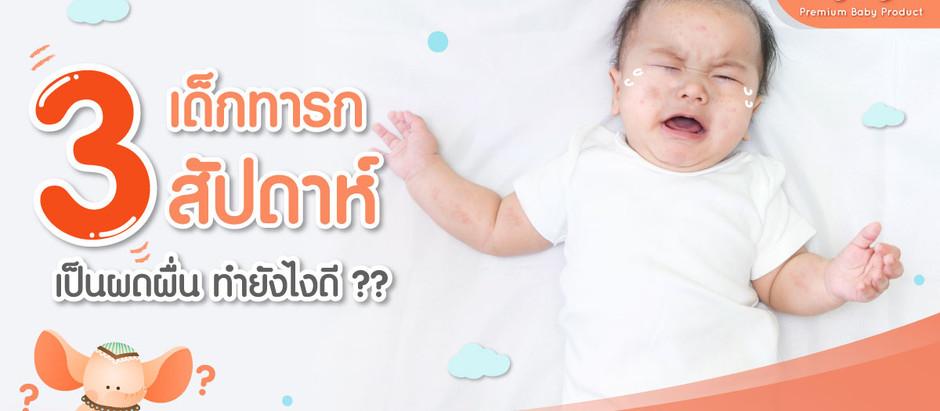 เด็กทารก 3 สัปดาห์ เป็นผดผื่น ทำยังไงดี