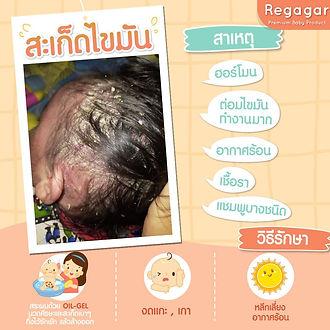 Baby oil-gel.jpg