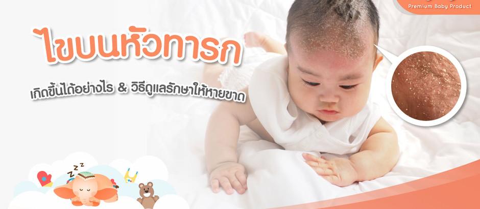 ไขบนหัวทารก เกิดขึ้นได้อย่างไร และมีวิธีดูแลรักษายังไงให้หายขาด