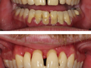 Periodontal Disease and its Unlikely Partner in Crime