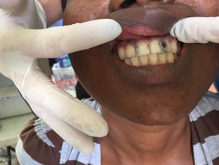 Dominican Patient: Before and After