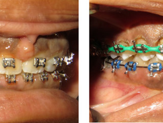 The Art of Reshaping Gingival Borders