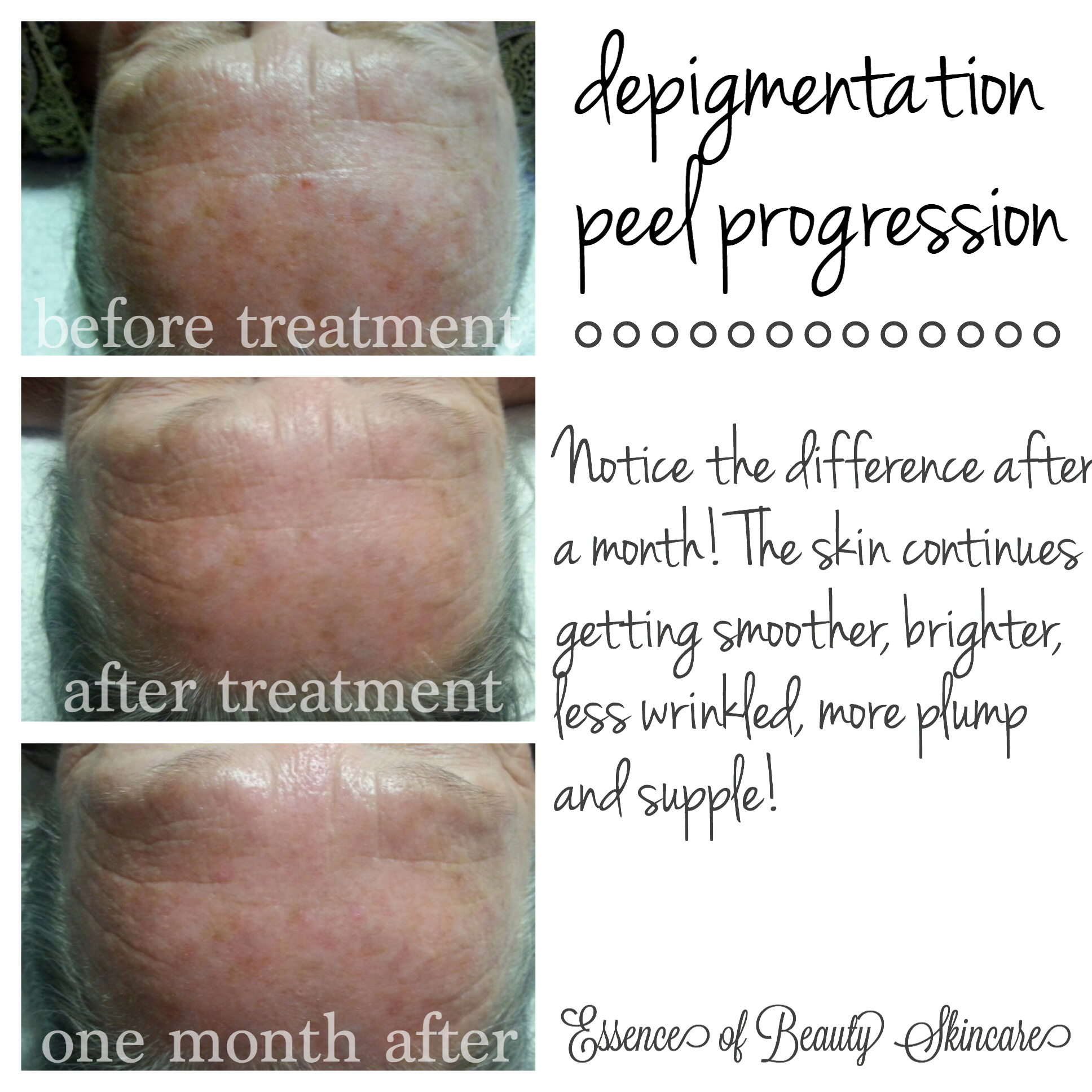Depigmentation Peel