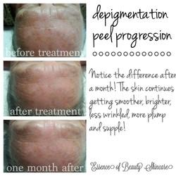 Depigmentation Peel