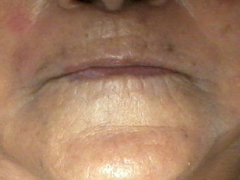 Resurfacing Stem Cell Facial (after)