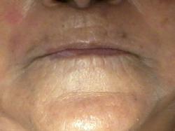 Resurfacing Stem Cell Facial (after)