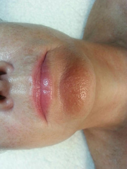 Lips - After