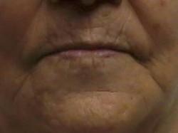 Resurfacing Stem Cell Facial (before
