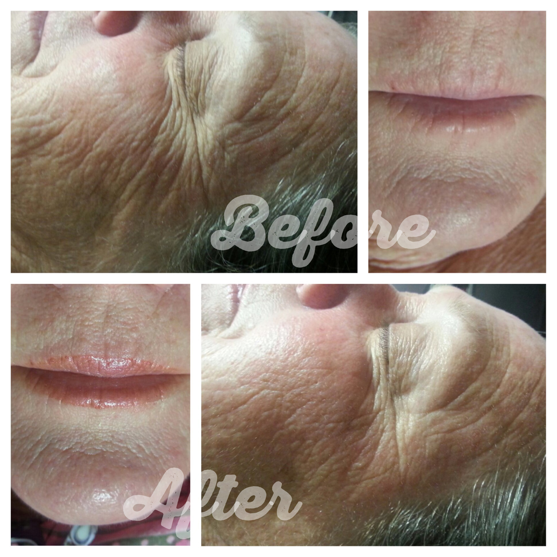 Depigmentation Peel & Facial