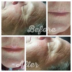 Depigmentation Peel & Facial