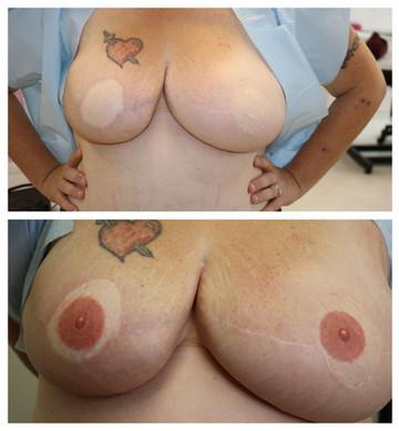Bilateral tattooing
